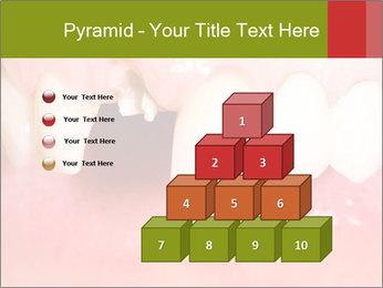 Broken front tooth PowerPoint Template - Slide 31