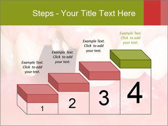 Broken front tooth PowerPoint Template - Slide 64