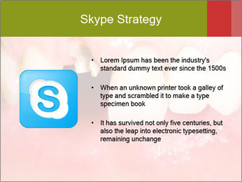 Broken front tooth PowerPoint Template - Slide 8