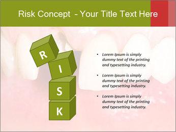 Broken front tooth PowerPoint Template - Slide 81