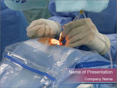 Eye Surgery PowerPoint Template
