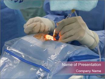 Eye Surgery PowerPoint Template - Slide 1