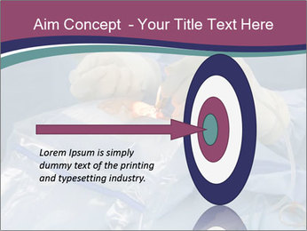 Eye Surgery PowerPoint Template - Slide 83