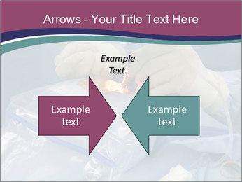 Eye Surgery PowerPoint Template - Slide 90