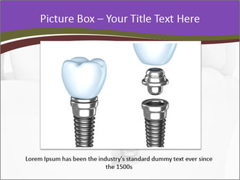 Dent Technology PowerPoint Template - Slide 15