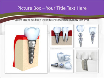 Dent Technology PowerPoint Template - Slide 19
