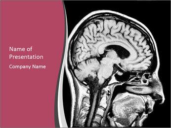 Brain Treatment PowerPoint Template