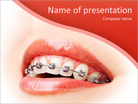 Teeth with braces powerpoint template backgrounds google slides teeth with braces powerpoint template toneelgroepblik Gallery