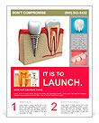Anatomy of healthy teeth and dental implant in jaw bone. Flyer Template
