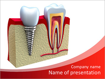 Anatomy of healthy teeth and dental implant in jaw bone. PowerPoint Template