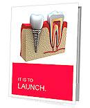 Anatomy of healthy teeth and dental implant in jaw bone. Presentation Folder