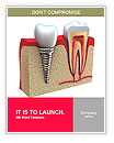 Anatomy of healthy teeth and dental implant in jaw bone. Word Templates