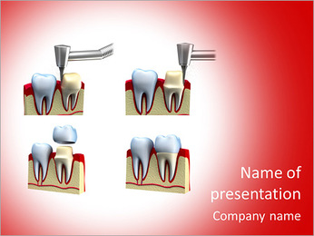 Dental crown installation process, isolated on white PowerPoint Template