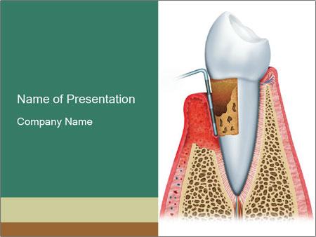 Tooth Prosthetics PowerPoint Templates