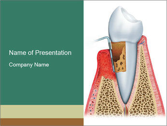 Tooth Prosthetics PowerPoint Template - Slide 1