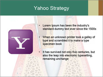 Tooth Prosthetics PowerPoint Template - Slide 11