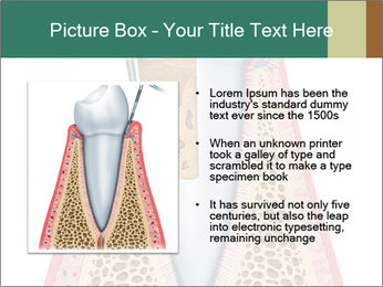 Tooth Prosthetics PowerPoint Template - Slide 13