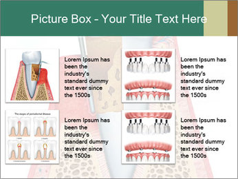 Tooth Prosthetics PowerPoint Template - Slide 14