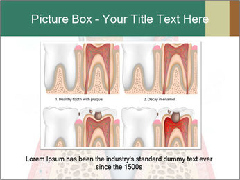 Tooth Prosthetics PowerPoint Template - Slide 15