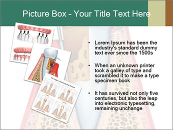 Tooth Prosthetics PowerPoint Template - Slide 17
