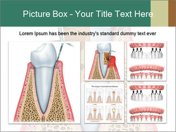 Tooth Prosthetics PowerPoint Template - Slide 19