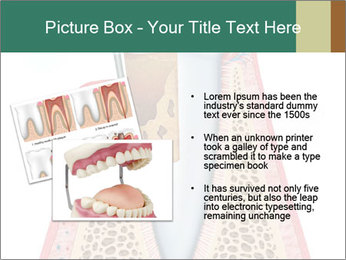 Tooth Prosthetics PowerPoint Template - Slide 20