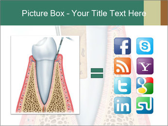 Tooth Prosthetics PowerPoint Template - Slide 21