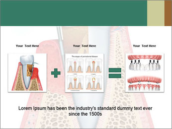 Tooth Prosthetics PowerPoint Template - Slide 22