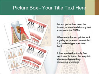 Tooth Prosthetics PowerPoint Template - Slide 23