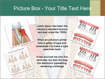 Tooth Prosthetics PowerPoint Template - Slide 24