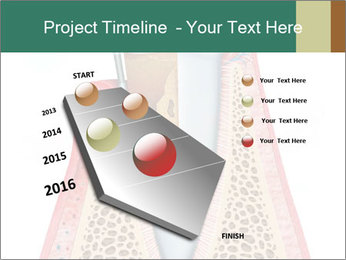Tooth Prosthetics PowerPoint Template - Slide 26