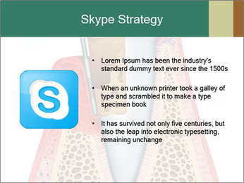 Tooth Prosthetics PowerPoint Template - Slide 8