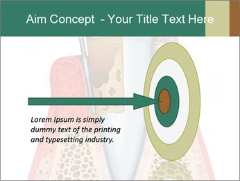 Tooth Prosthetics PowerPoint Template - Slide 83