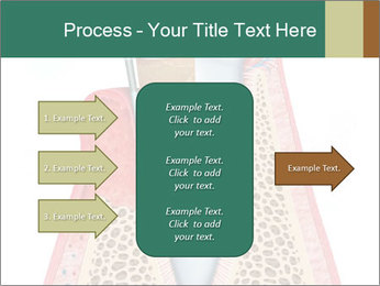 Tooth Prosthetics PowerPoint Template - Slide 85