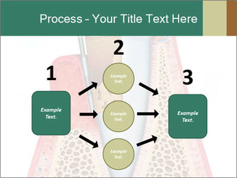 Tooth Prosthetics PowerPoint Template - Slide 92