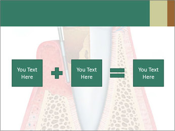Tooth Prosthetics PowerPoint Template - Slide 95