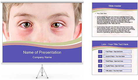 Boy Has Itchy Eyes PowerPoint Template
