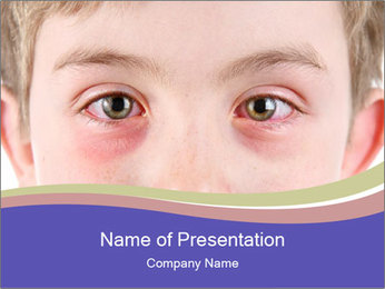 Boy Has Itchy Eyes PowerPoint Templates - Slide 1
