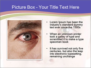 Boy Has Itchy Eyes PowerPoint Templates - Slide 13