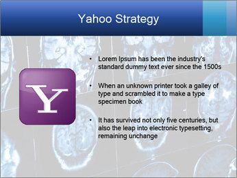 X-rays PowerPoint Template - Slide 11