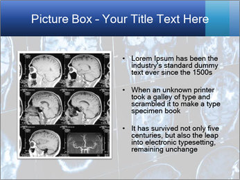 X-rays PowerPoint Template - Slide 13