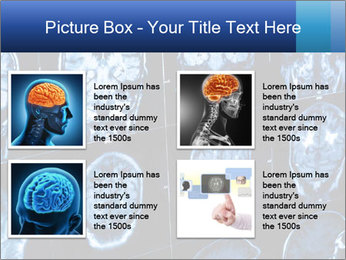 X-rays PowerPoint Template - Slide 14