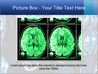 X-rays PowerPoint Template - Slide 15