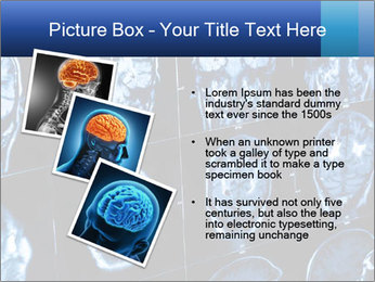X-rays PowerPoint Template - Slide 17