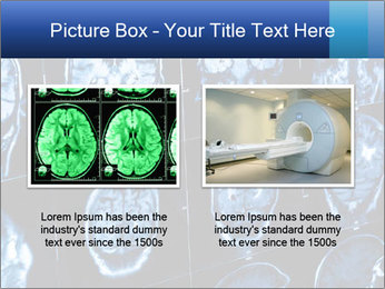 X-rays PowerPoint Template - Slide 18