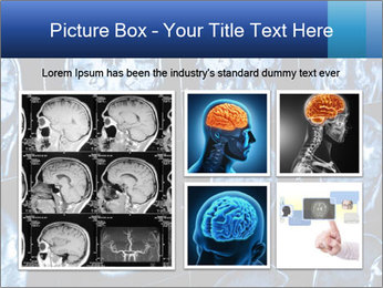 X-rays PowerPoint Template - Slide 19