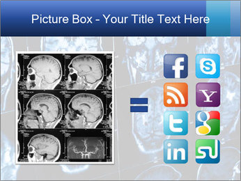 X-rays PowerPoint Template - Slide 21