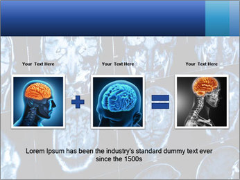 X-rays PowerPoint Template - Slide 22