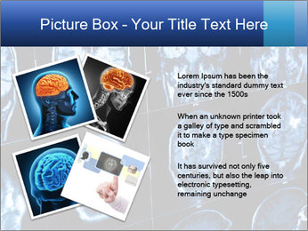 X-rays PowerPoint Template - Slide 23