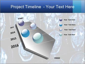 X-rays PowerPoint Template - Slide 26